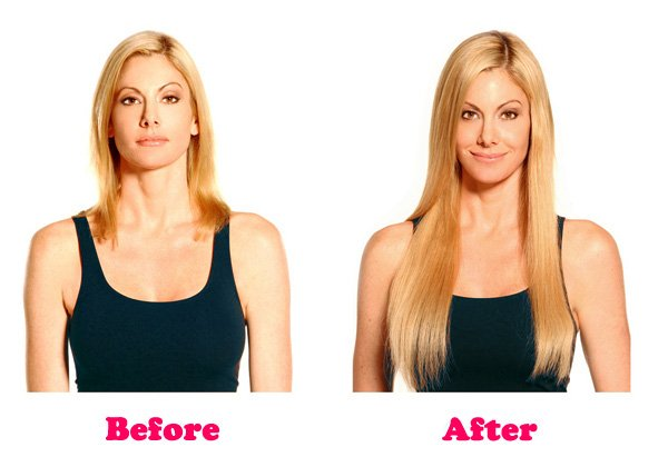 biotin-before-and-after-2