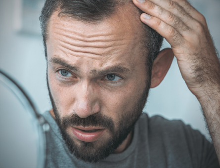 HOW TO PREVENT FURTHER HAIR LOSS DAMAGE (1)